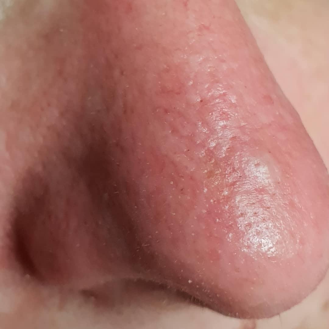 Uklanjanje rozaceje i kapilara