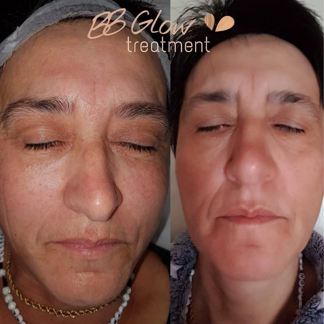 BB Glow Tretman - prije i poslije